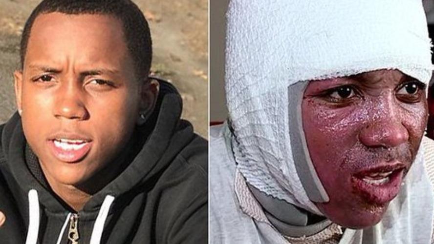Hot Water Challenge: Un garçon de 15 ans échappe à la mort (vidéo)